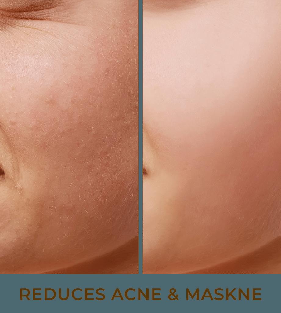 reduces acne & maskne