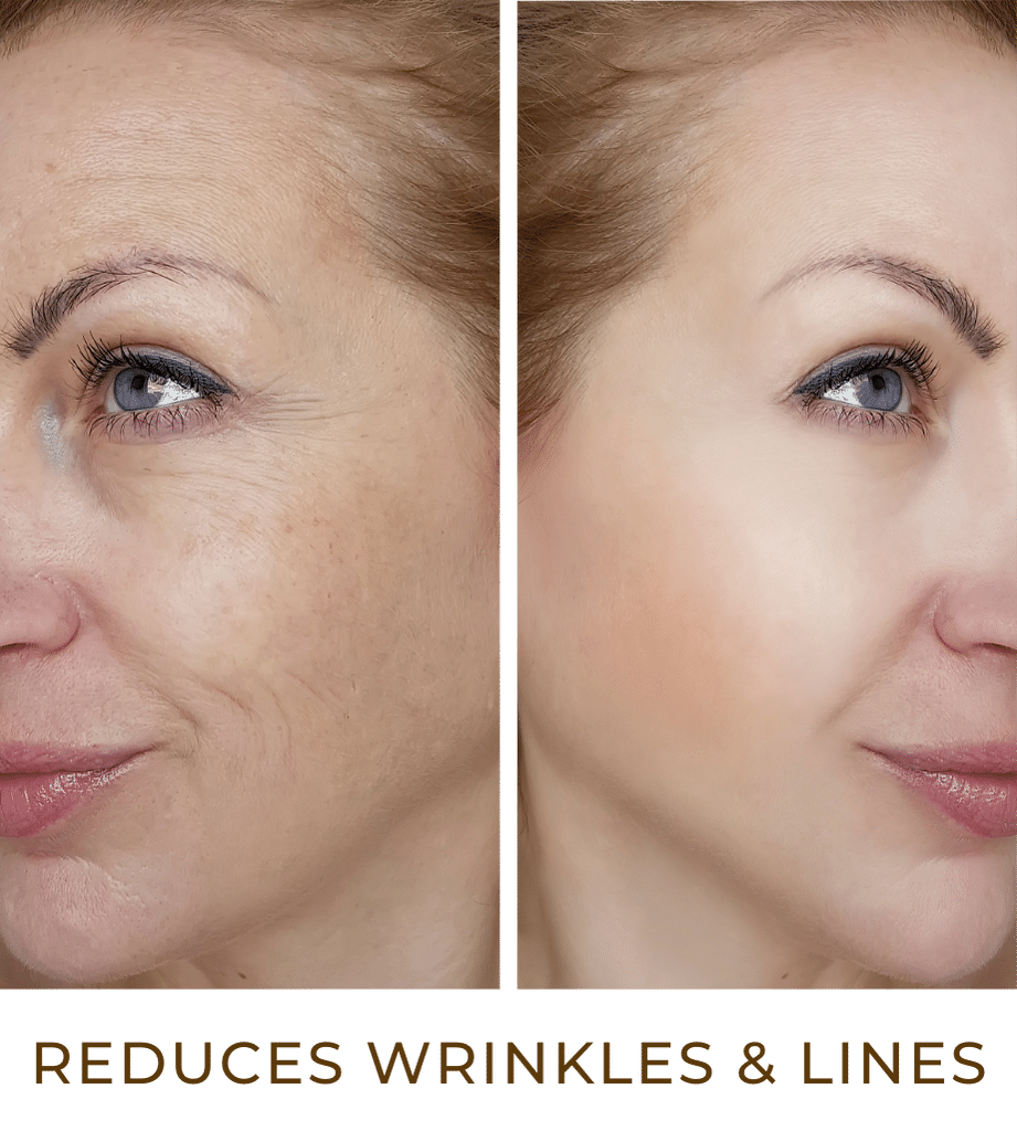 reduces wrinkles & lines