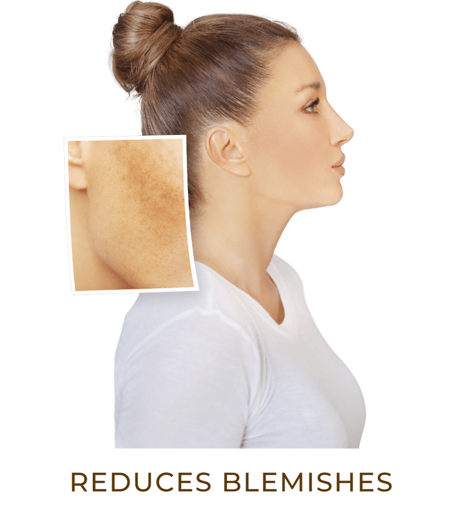 reduces blemishes